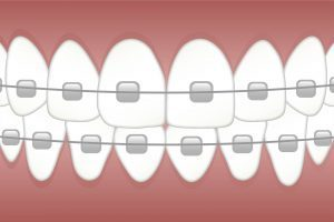Шини за зъби - Медика 3 Дент