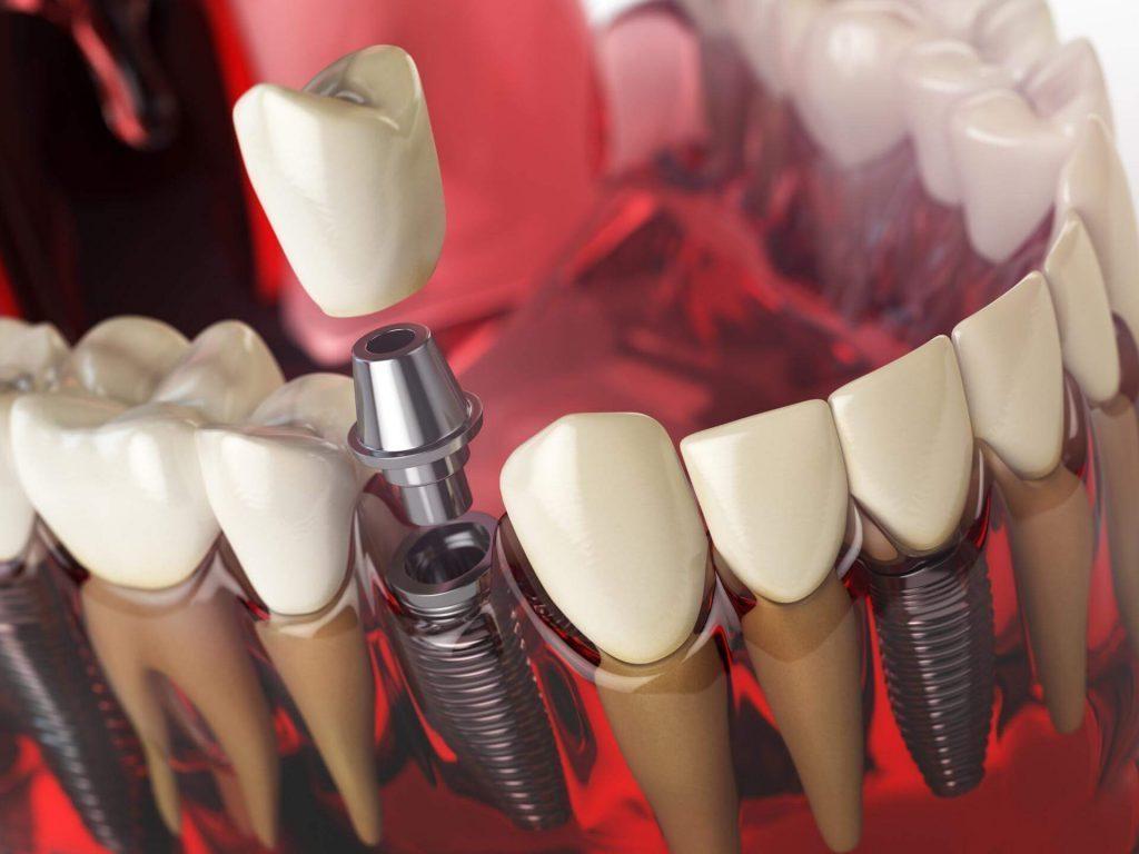 Поставяне на зъбни импанти