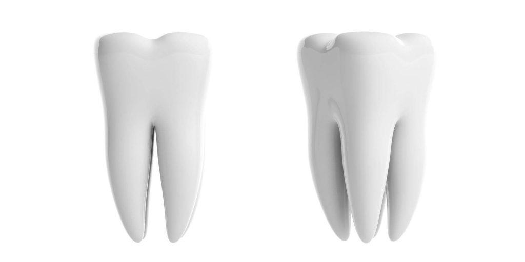 Зъб Мъдрец - снимка от зъболекар във Варна - Медика 3 Дент
