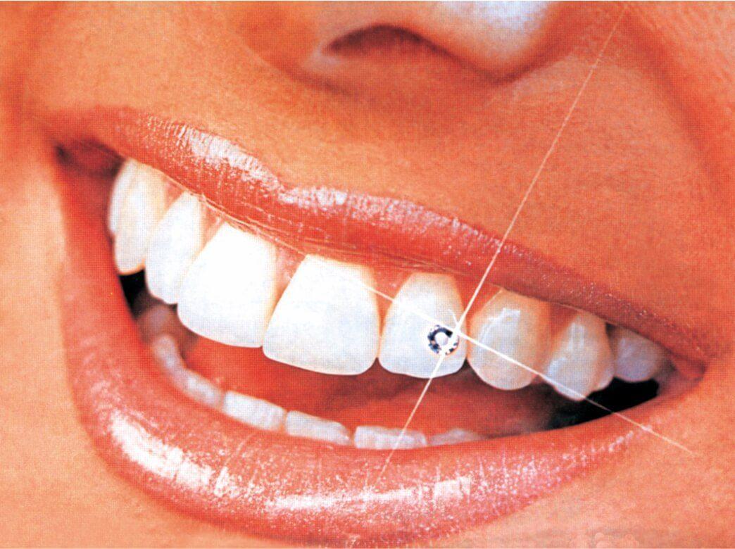 Кореново лечение на зъб