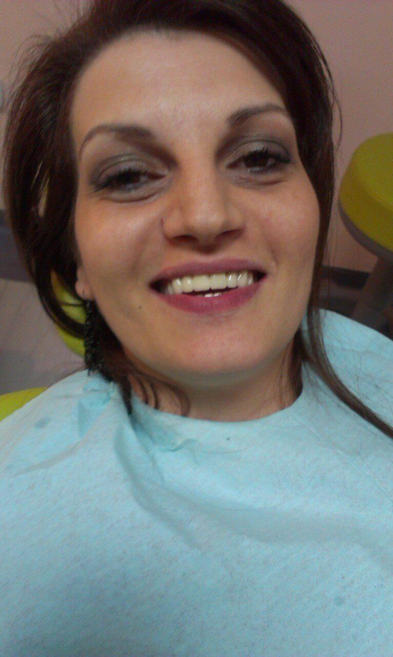 Зъболекар Варна — Медика 3 ДентЦиркониева коронка - Медика 3 Дент