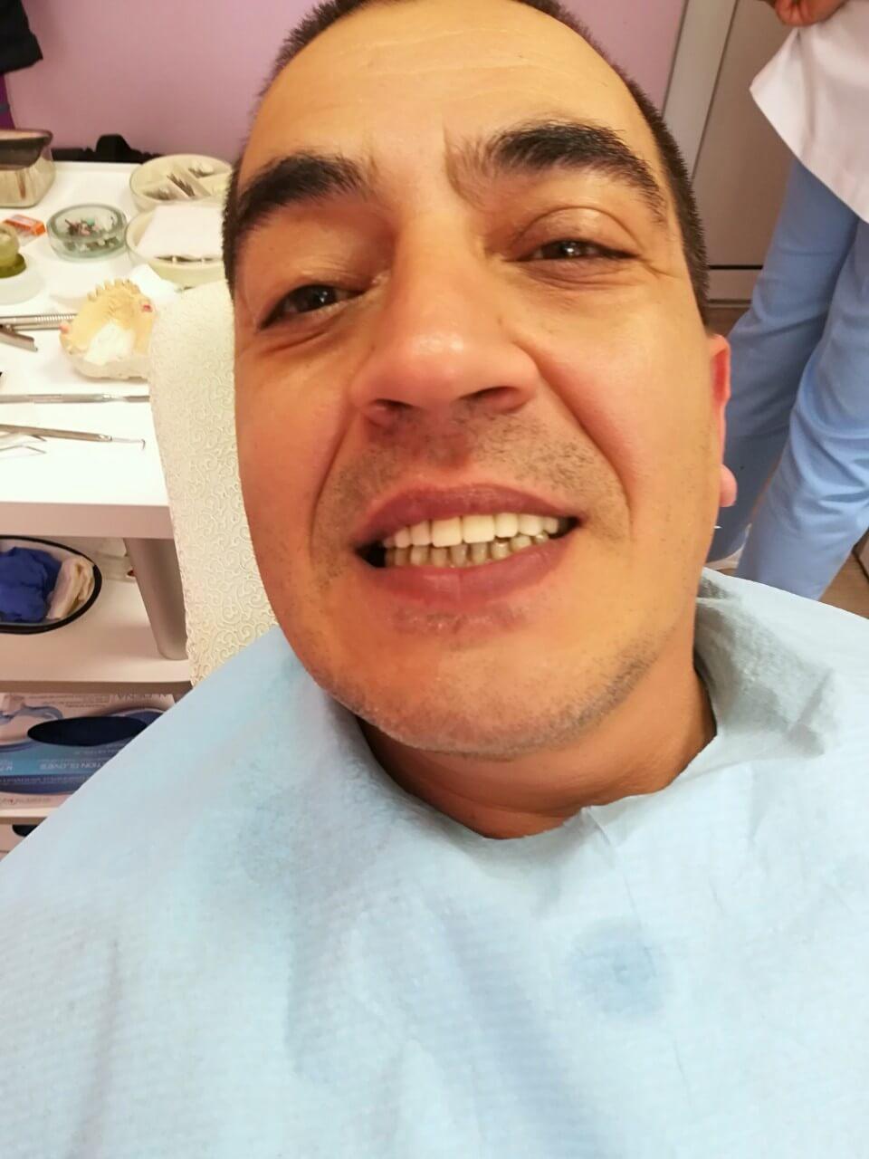 Избелване на зъбиПоставяне на зъбни коронки и зъбен мост - - Медика 3 Дент