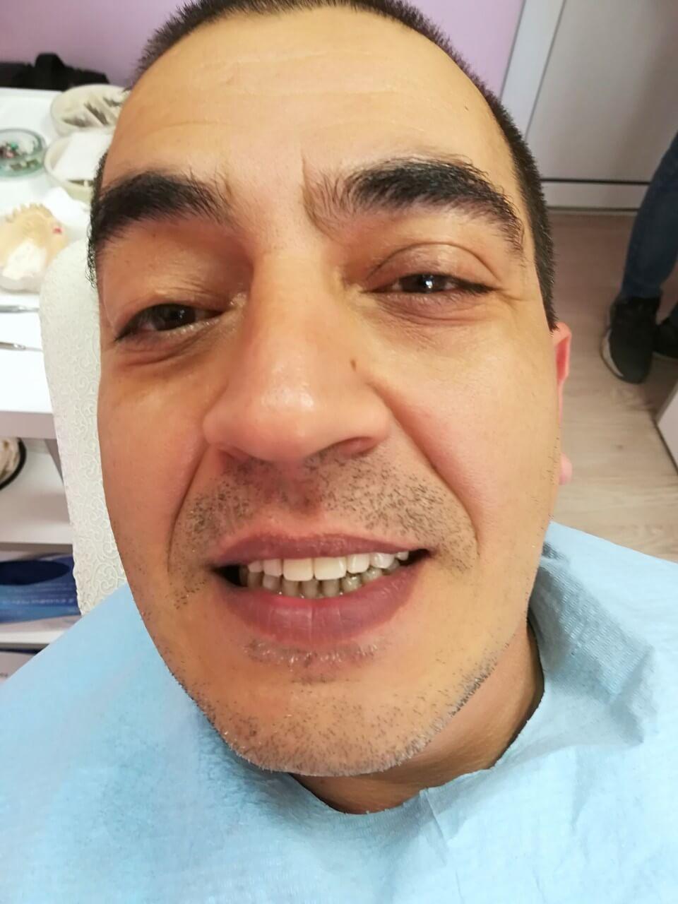 Зъбобол 【Причини и лекове】Поставяне на зъбни импанти- Медика 3 Дент