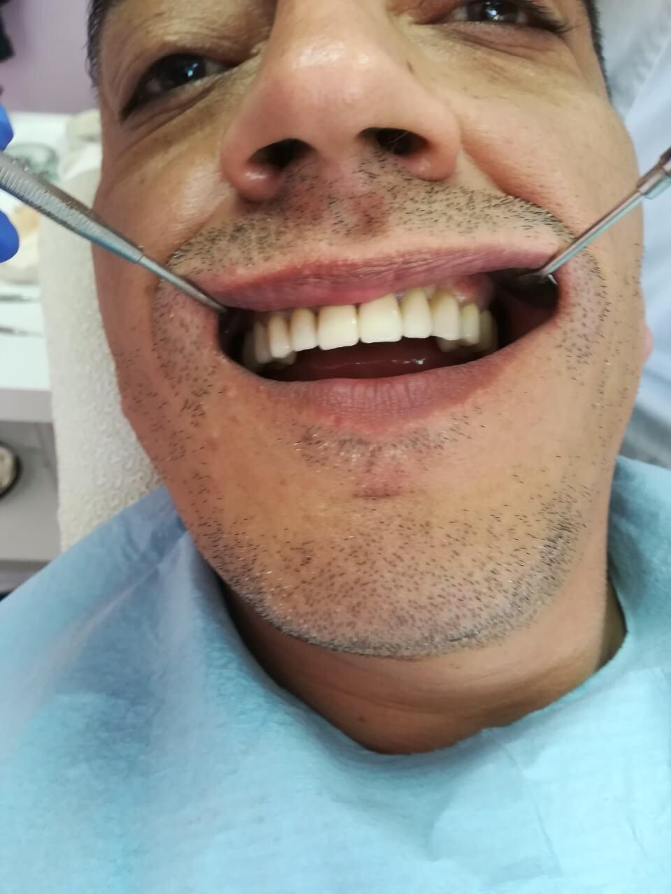 Избелване на зъбиПоставяне на зъбни коронки - Медика 3 Дент